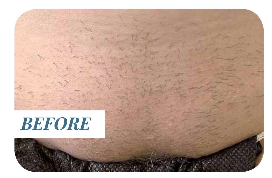 Laser Hair Removal   Au Natural Medi Aesthetics